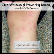 Skin Wellness A Poison Ivy Remedy {www.QuietInTheChaos.com}